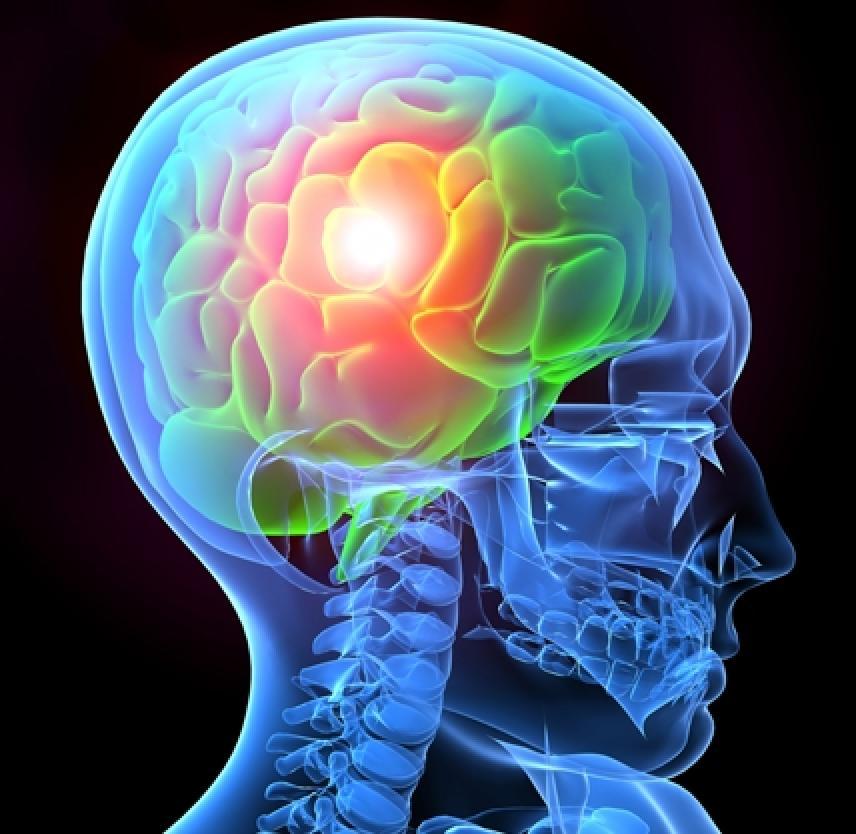 MFVN Wetenschapsavond Traumatisch Hersenletsel